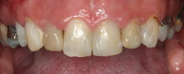 PorcelainVeneers_Patient5_B2