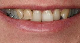 PorcelainVeneers_Patient6_B2