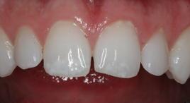 PorcelainVeneers_Patient14_B2