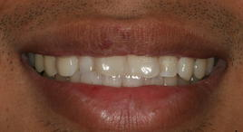 PorcelainVeneers_Patient22_B2