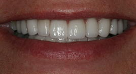 PorcelainVeneers_Patient6_A2